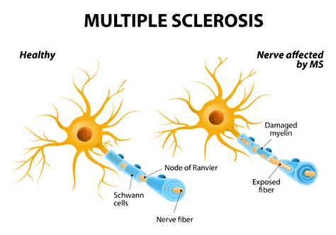 New research on multiple sclerosis